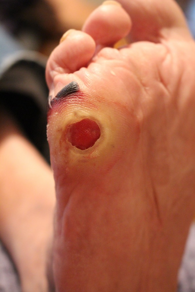 foot at start of honey treatment