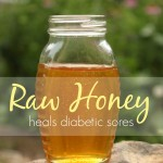 Raw honey heals diabetic sores